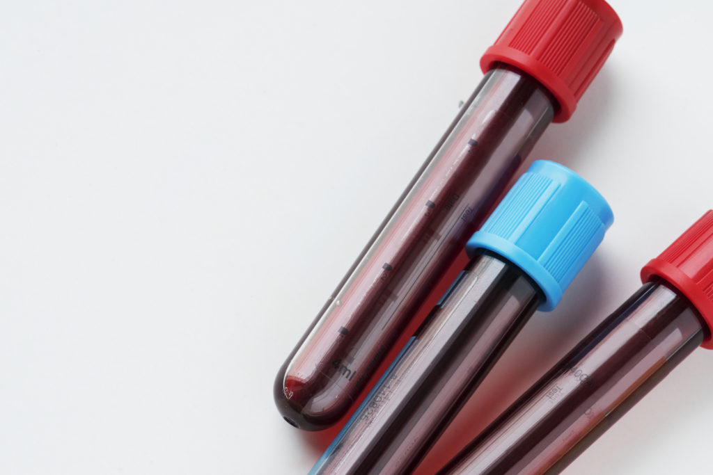 5 Tips to Make Your Blood Test Easier